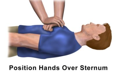 Chest Compressions for Cardiac Arrest